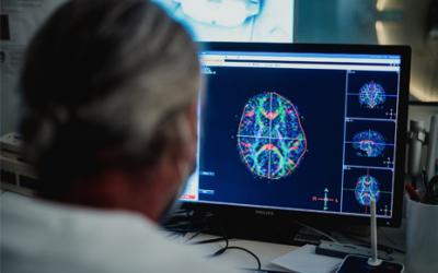 SAN CAMILLO IRCCS CERCA: MEDICO NEUROLOGO – RICERCATORE SETTORE NEUROIMMAGINI